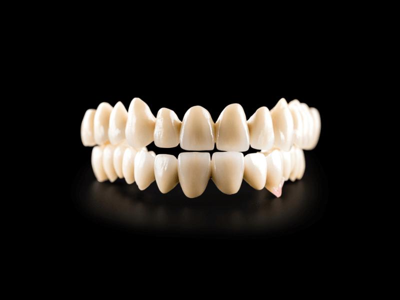 Orsaker och lösning till tandlöshet